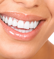 Teeth Whitening Services Jenkintown, PA